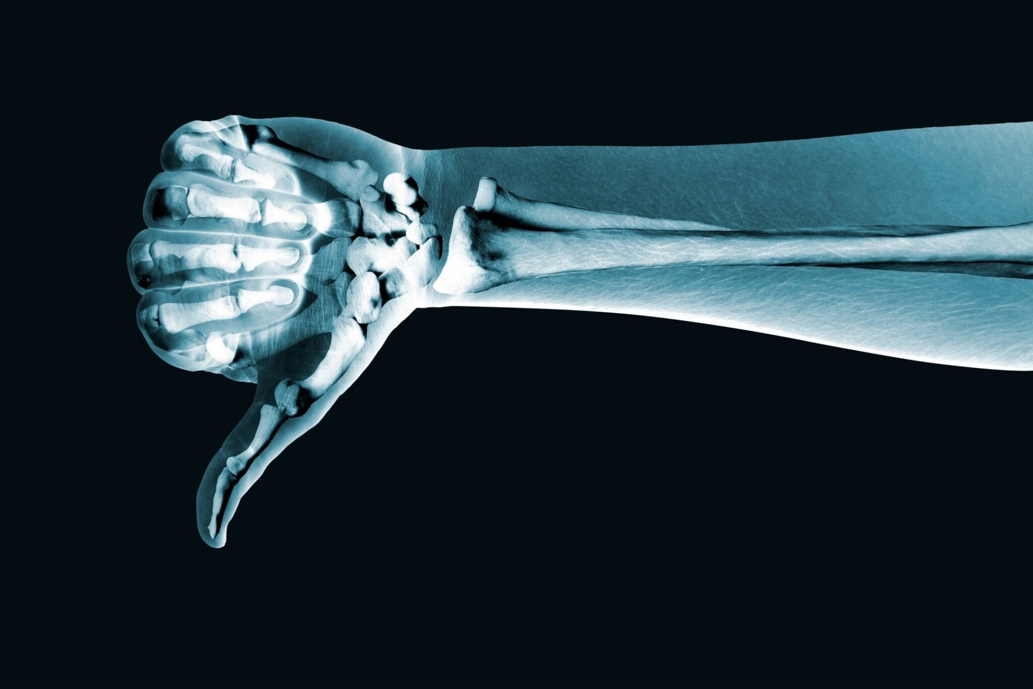 X-Ray Thumbs-down